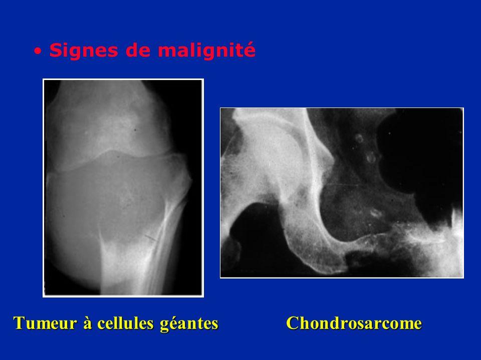 Tumeur à cellules géantes Chondrosarcome