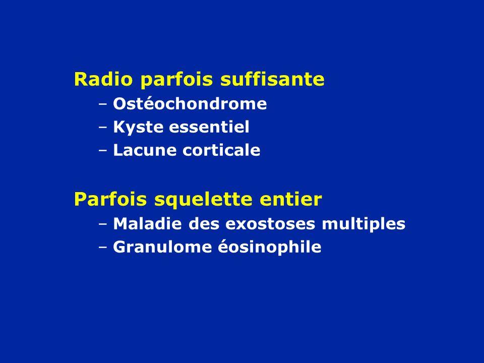 Radio parfois suffisante