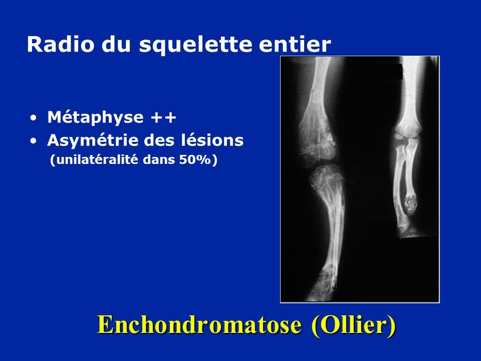 Enchondromatose (Ollier)