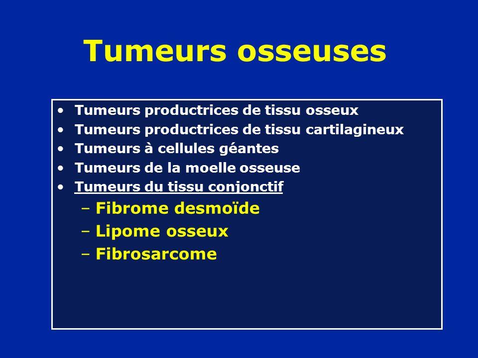 Tumeurs osseuses Fibrome desmoïde Lipome osseux Fibrosarcome