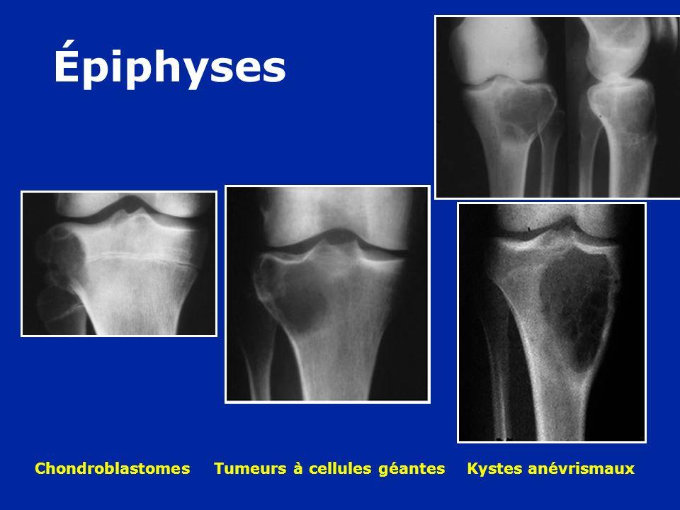 Épiphyses Chondroblastomes Tumeurs à cellules géantes Kystes anévrismaux