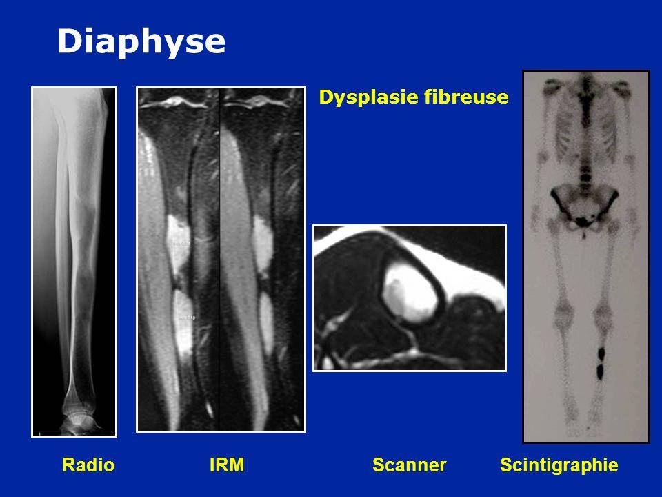 Diaphyse F 30 ans : Douleurs à la course Dysplasie fibreuse