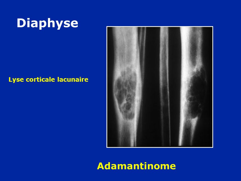 Diaphyse Lyse corticale lacunaire Adamantinome