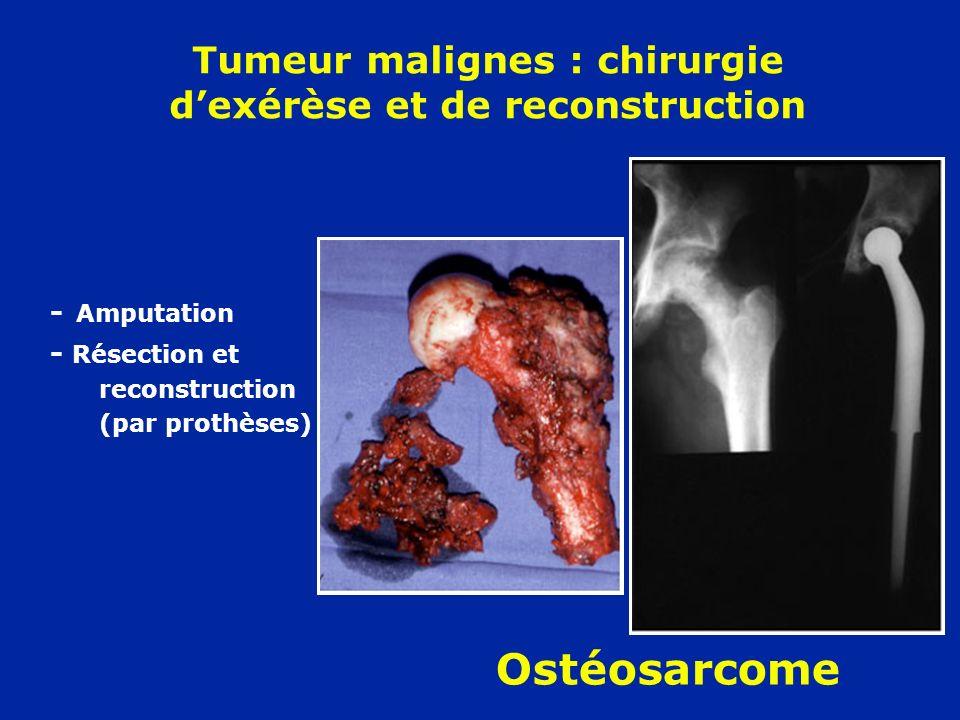Tumeur malignes : chirurgie d'exérèse et de reconstruction