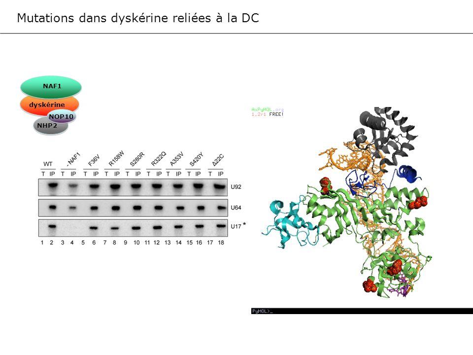 Mutations dans dyskérine reliées à la DC