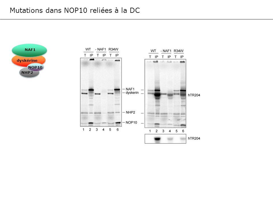 Mutations dans NOP10 reliées à la DC