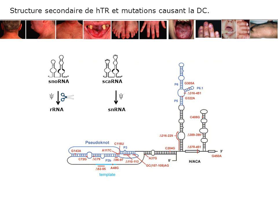 ψ Structure secondaire de hTR et mutations causant la DC.