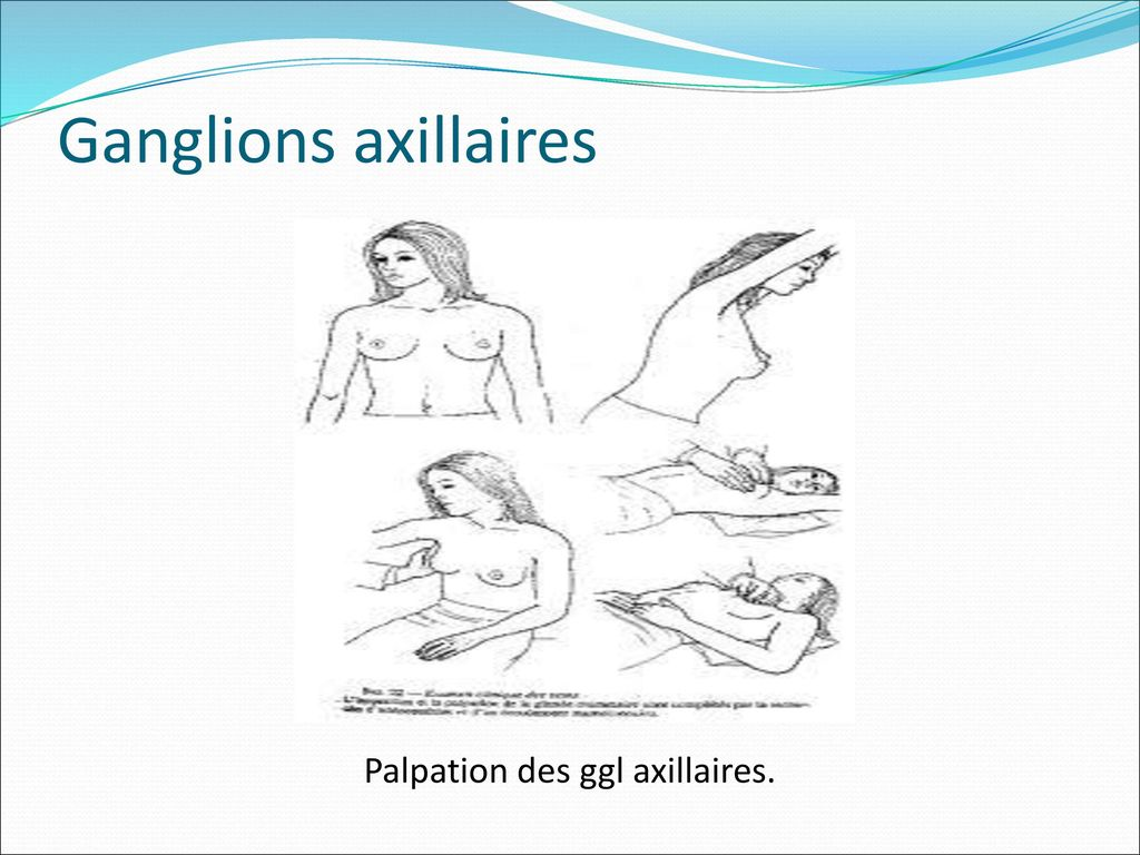 Palpation des ggl axillaires.