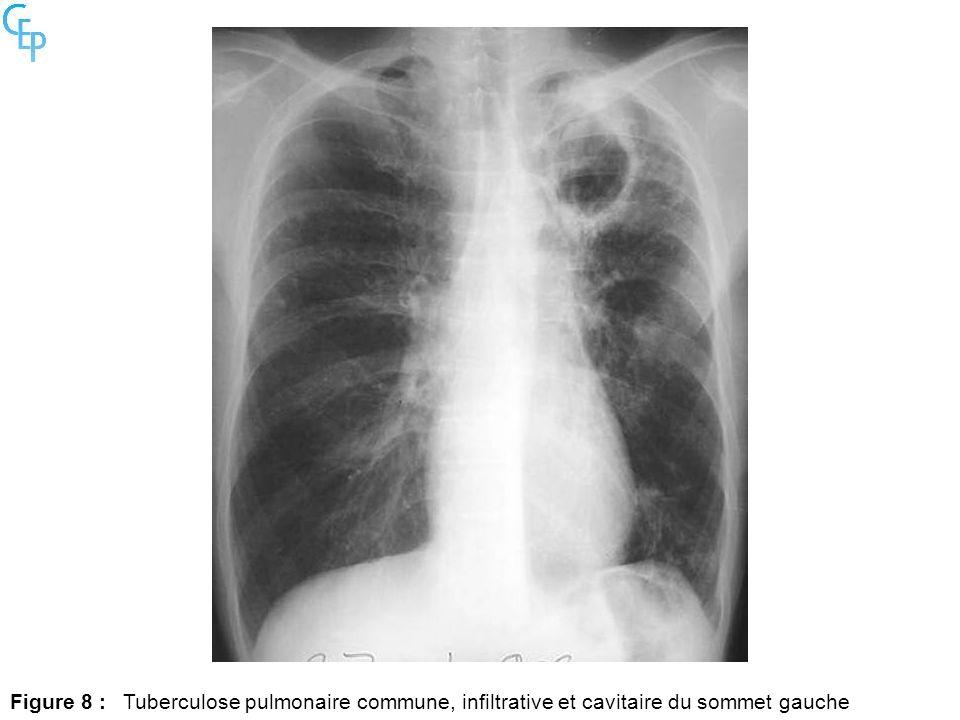 Figure 8 : Tuberculose pulmonaire commune, infiltrative et cavitaire du sommet gauche