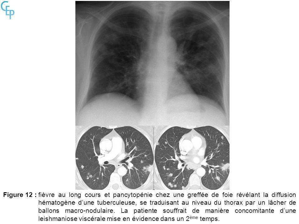Figure 12 : fièvre au long cours et pancytopénie chez une greffée de foie révélant la diffusion hématogène d'une tuberculeuse, se traduisant au niveau du thorax par un lâcher de ballons macro-nodulaire.