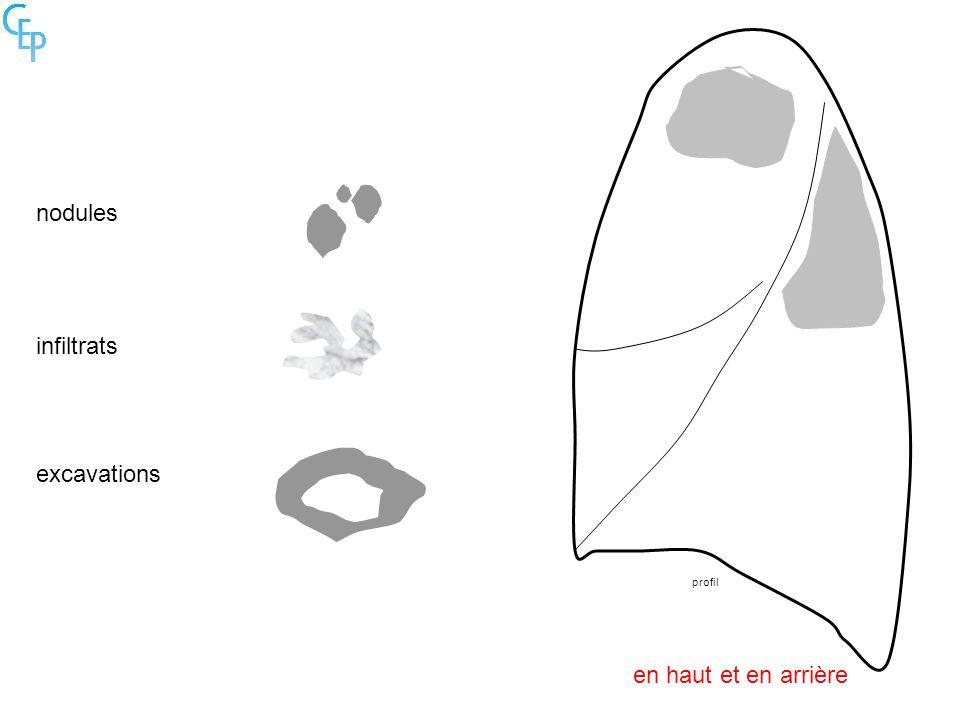 profil nodules infiltrats excavations en haut et en arrière