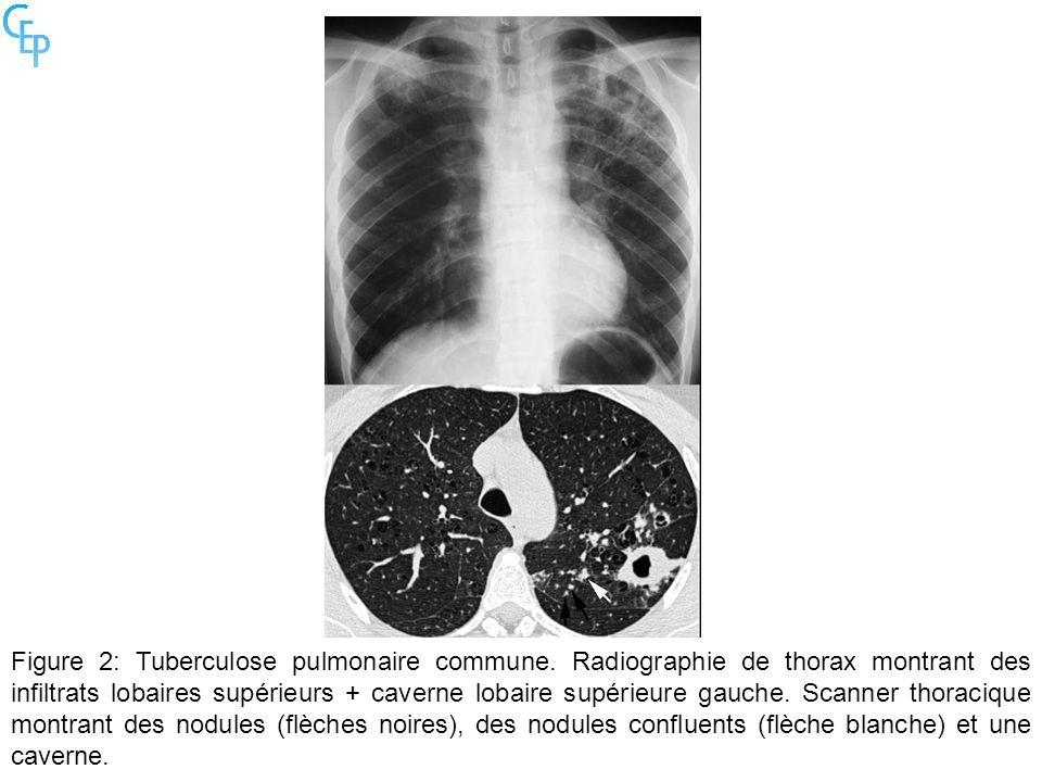 Figure 2: Tuberculose pulmonaire commune