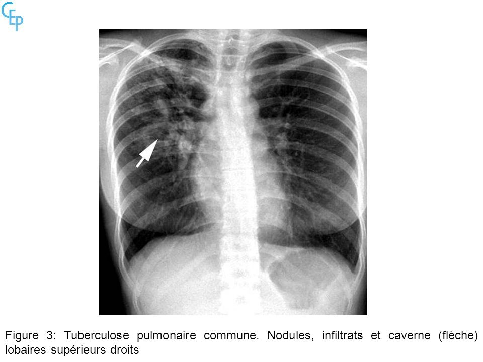 Figure 3: Tuberculose pulmonaire commune