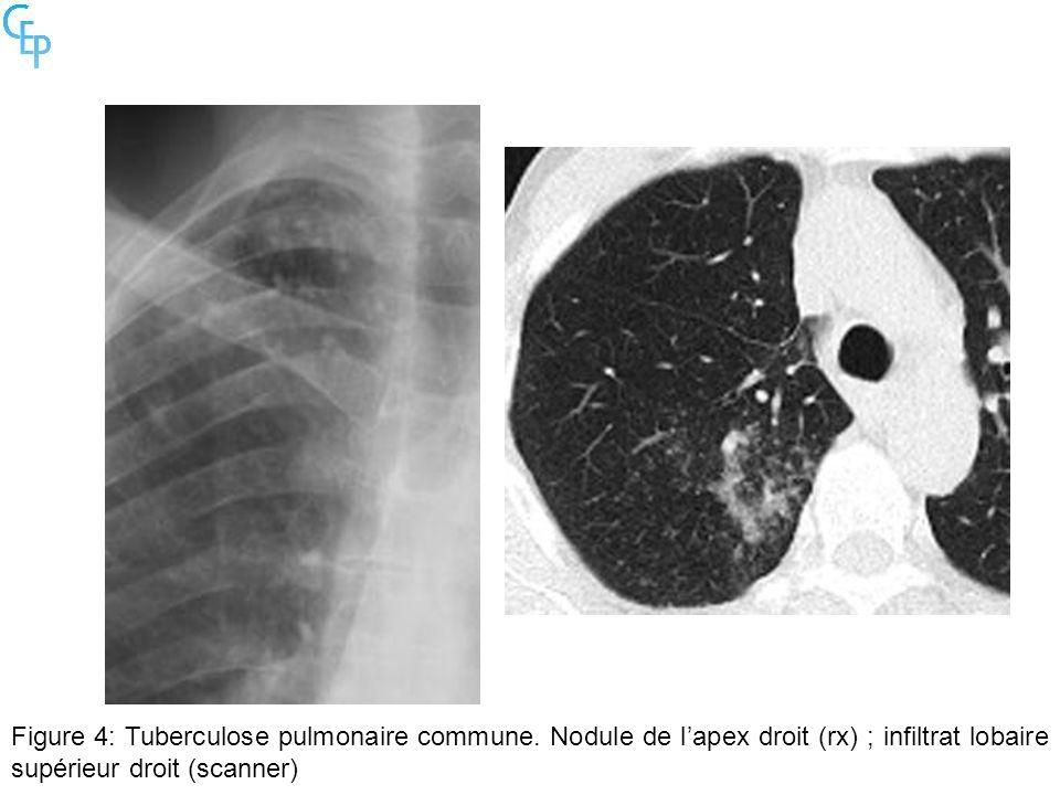 Figure 4: Tuberculose pulmonaire commune