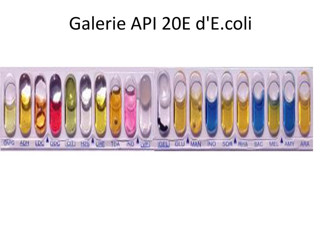 api 20e Api 20e this api-20e test strip (from biomerieux, inc) is used to identify the enteric gram negative rods (although api makes a variety of other test strips for  comparison api 20e, conventional media identification.