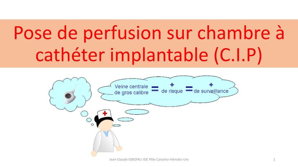 Pose de perfusion sur chambre cath ter implantable c i - Chambre a catheter implantable ...
