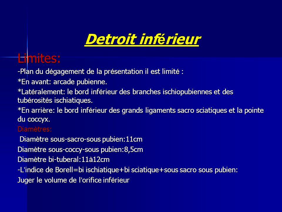 Detroit inférieur Limites: