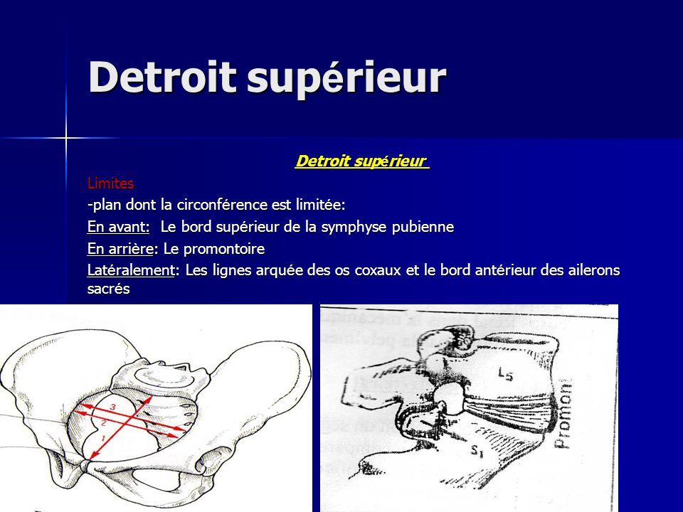 Detroit supérieur Detroit supérieur Limites