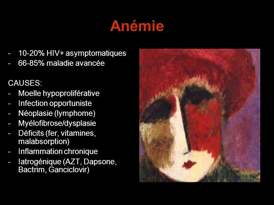 Anémie 10-20% HIV+ asymptomatiques 66-85% maladie avancée CAUSES:
