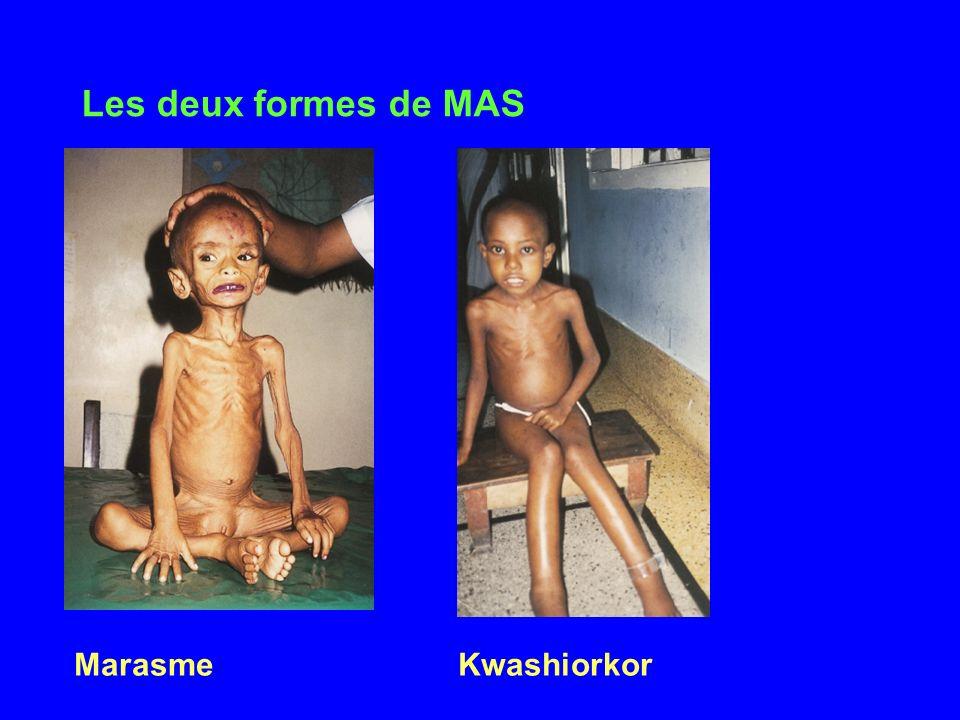 Les deux formes de MAS Marasme Kwashiorkor 2