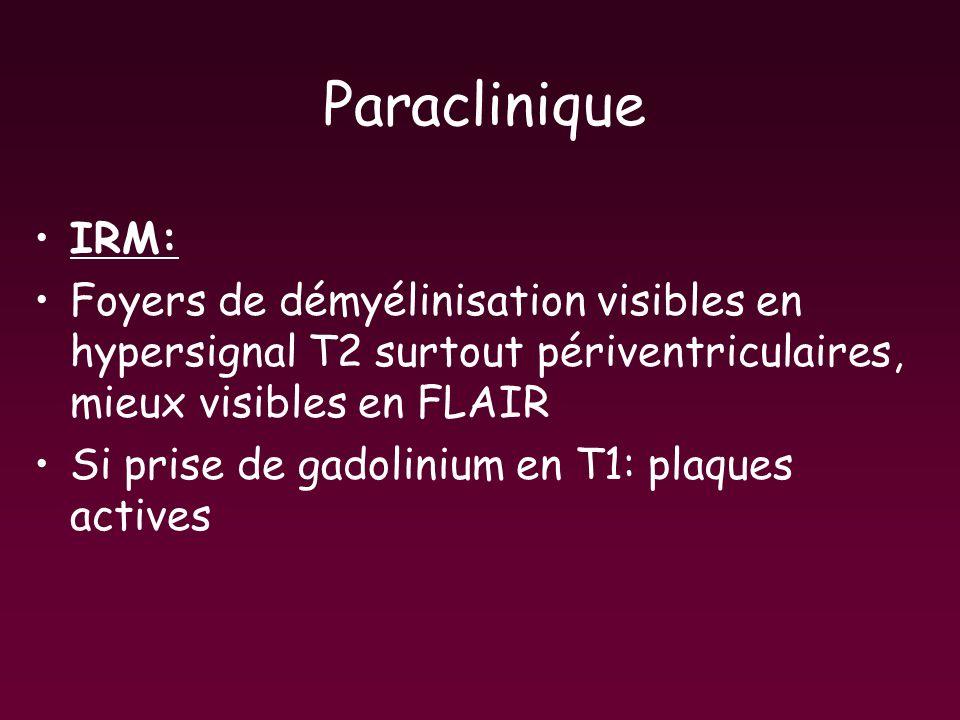 Paraclinique IRM: Foyers de démyélinisation visibles en hypersignal T2 surtout périventriculaires, mieux visibles en FLAIR.