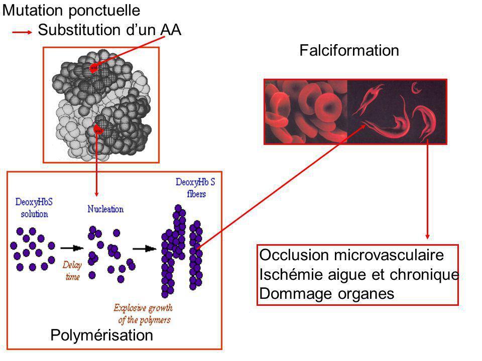 Mutation ponctuelle Substitution d'un AA. Falciformation. Occlusion microvasculaire. Ischémie aigue et chronique.