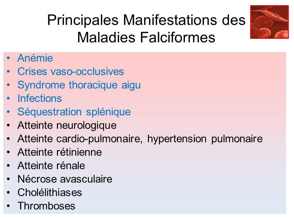 Principales Manifestations des Maladies Falciformes