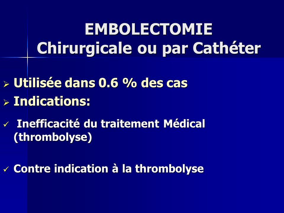 EMBOLECTOMIE Chirurgicale ou par Cathéter