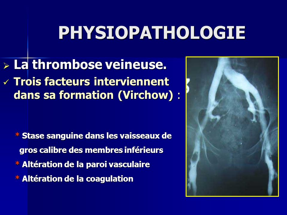 PHYSIOPATHOLOGIE La thrombose veineuse.