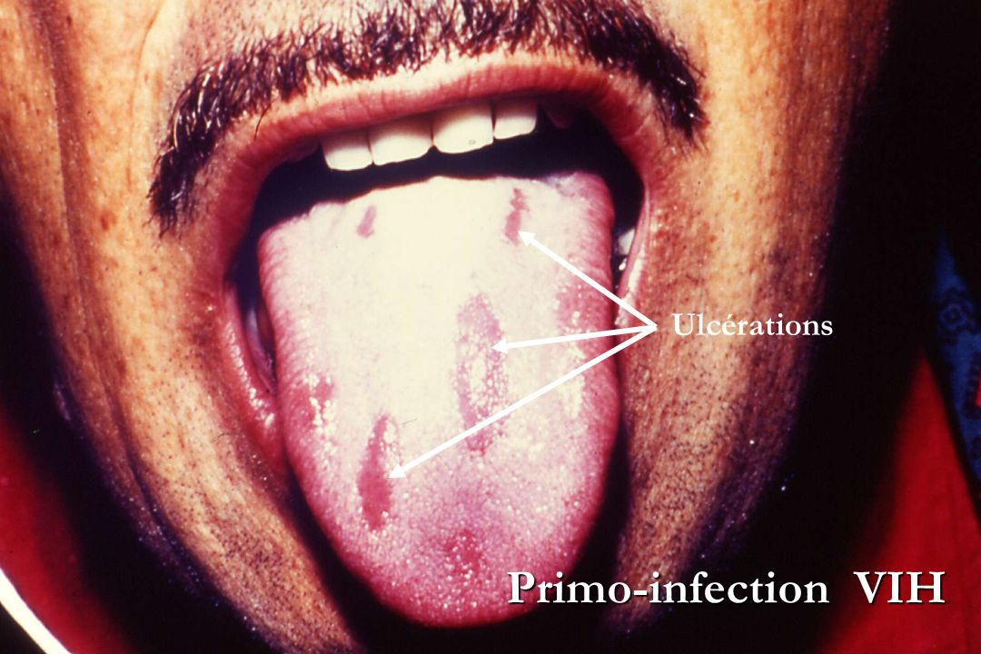 Ulcérations Primo-infection VIH