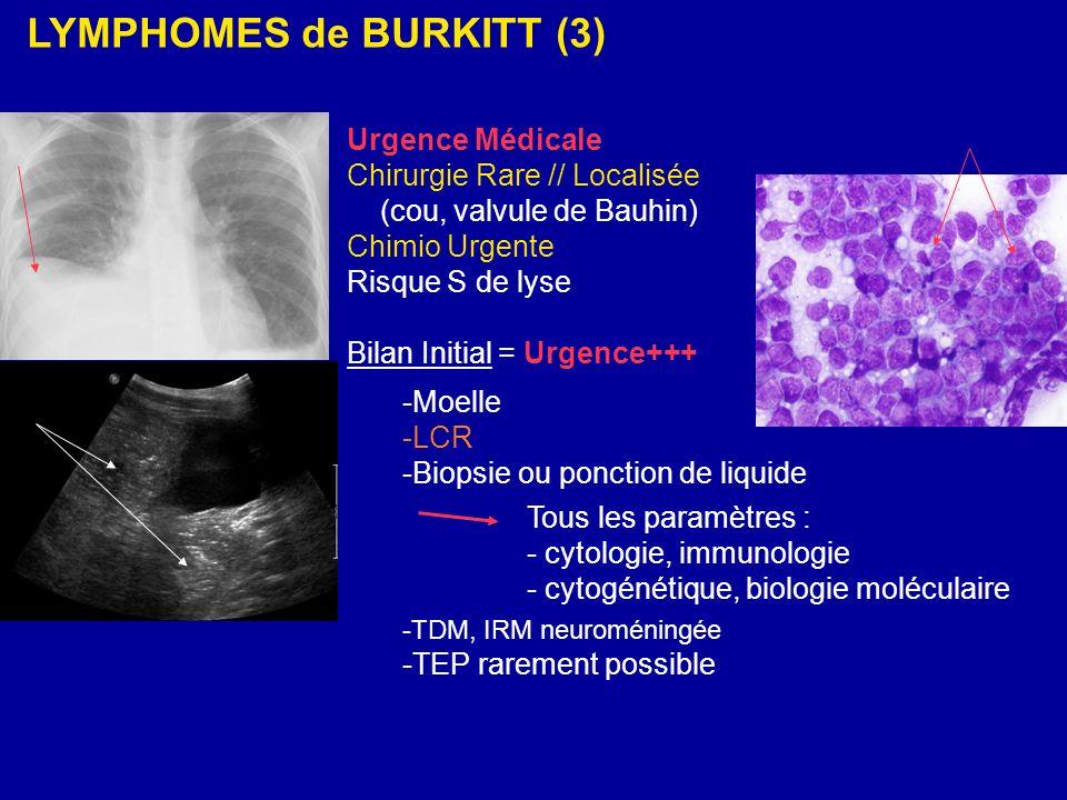 LYMPHOMES de BURKITT (3)
