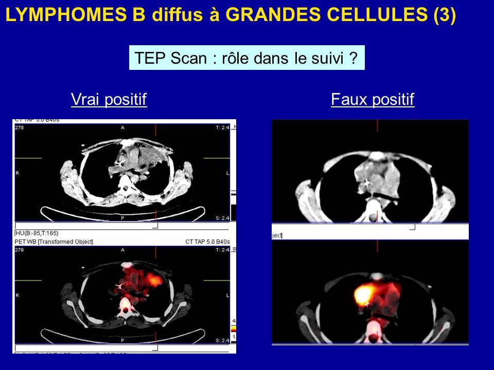 LYMPHOMES B diffus à GRANDES CELLULES (3)