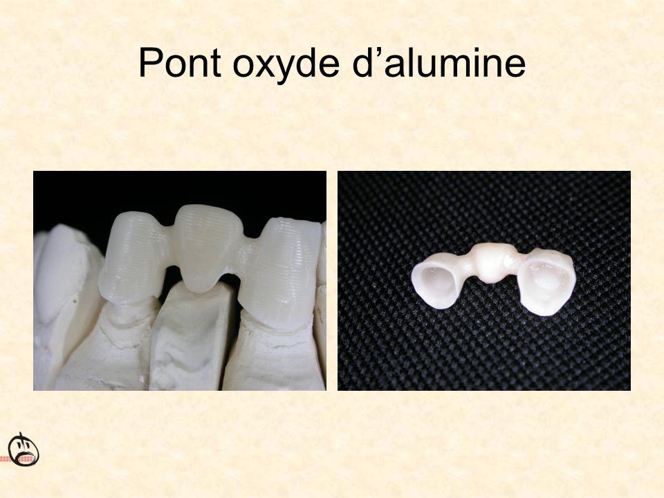 Pont oxyde d'alumine