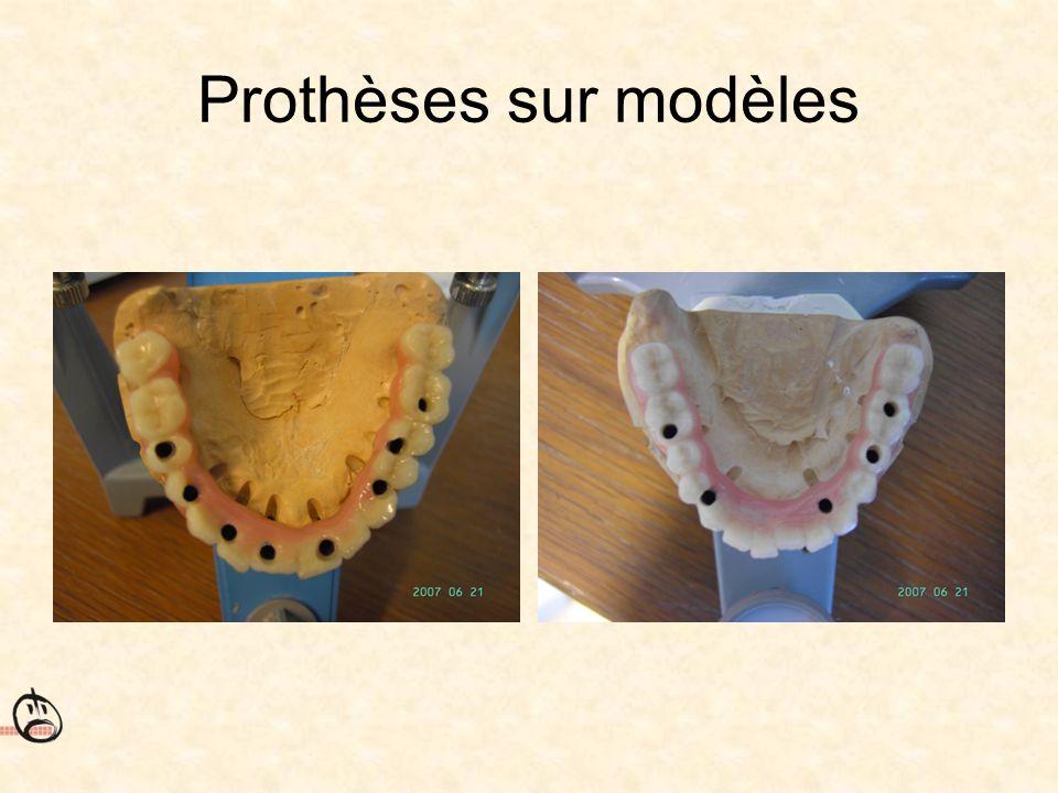 Prothèses sur modèles