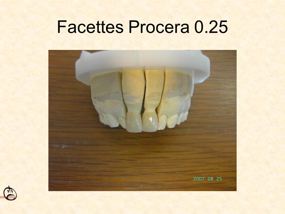 Facettes Procera 0.25