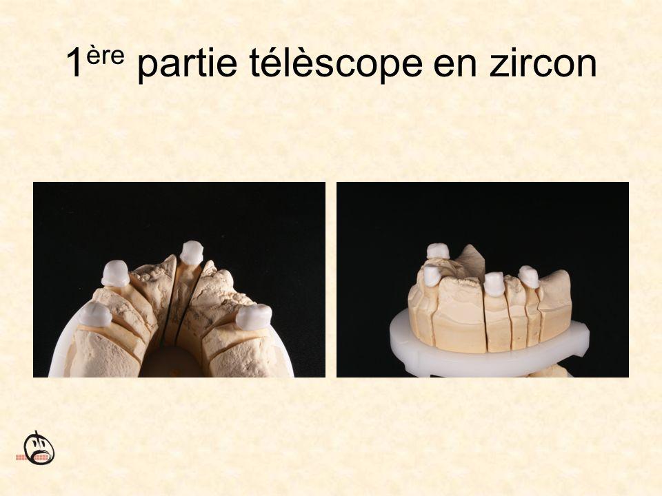 1ère partie télèscope en zircon