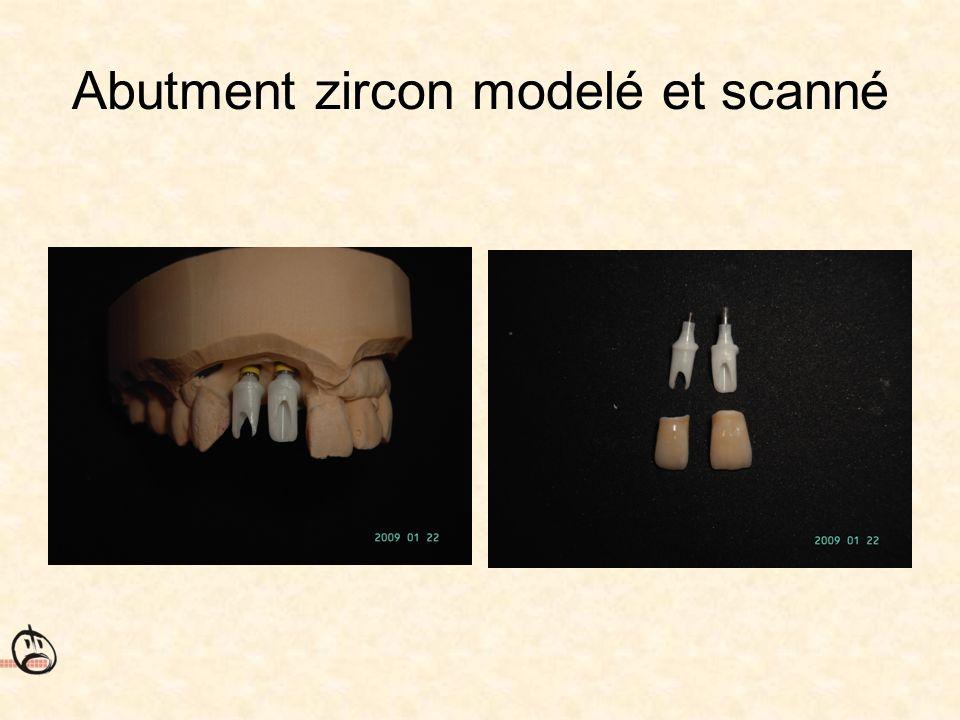 Abutment zircon modelé et scanné