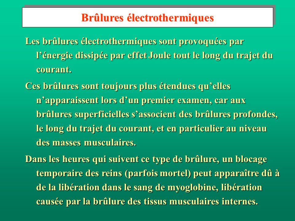 Brûlures électrothermiques