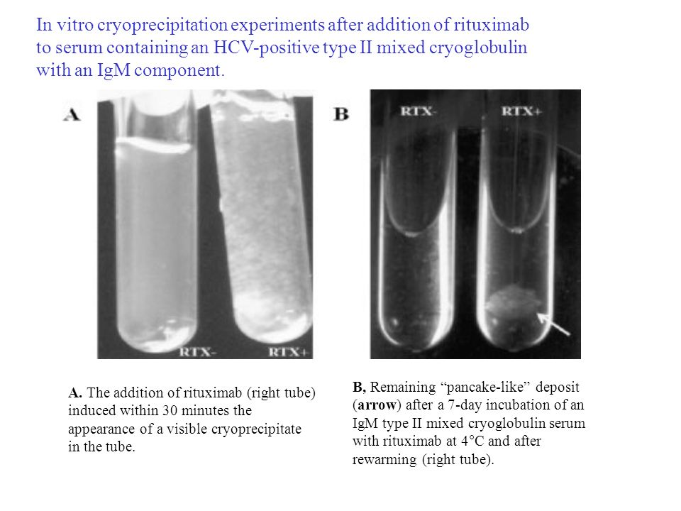 In vitro cryoprecipitation experiments after addition of rituximab