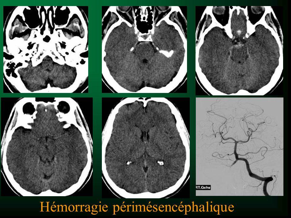Hémorragie périmésencéphalique