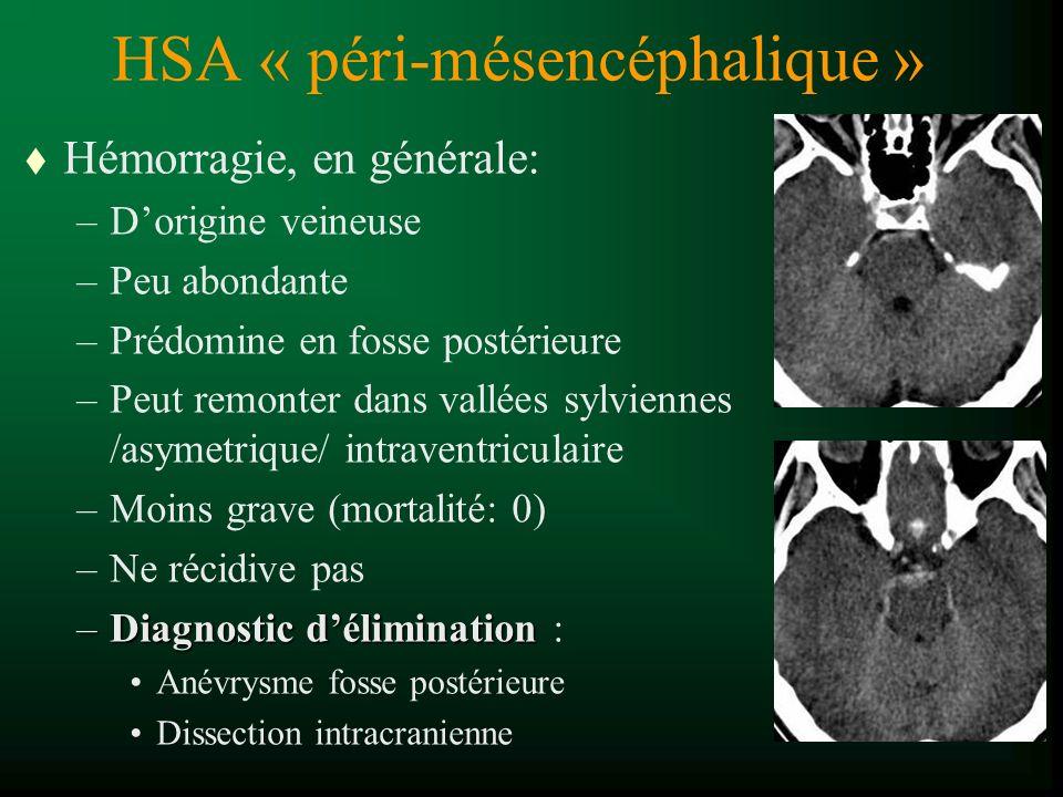 HSA « péri-mésencéphalique »