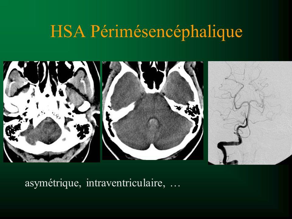 HSA Périmésencéphalique