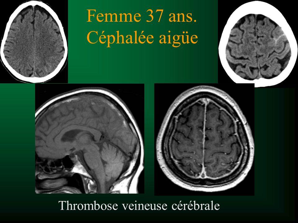Femme 37 ans. Céphalée aigüe