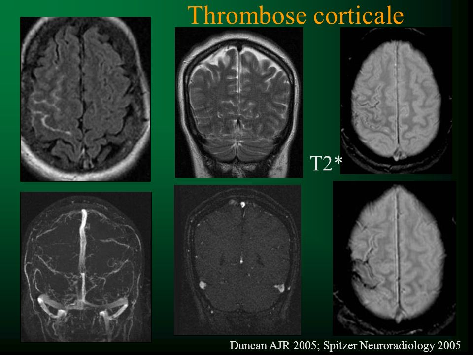 Thrombose corticale T2* Duncan AJR 2005; Spitzer Neuroradiology 2005