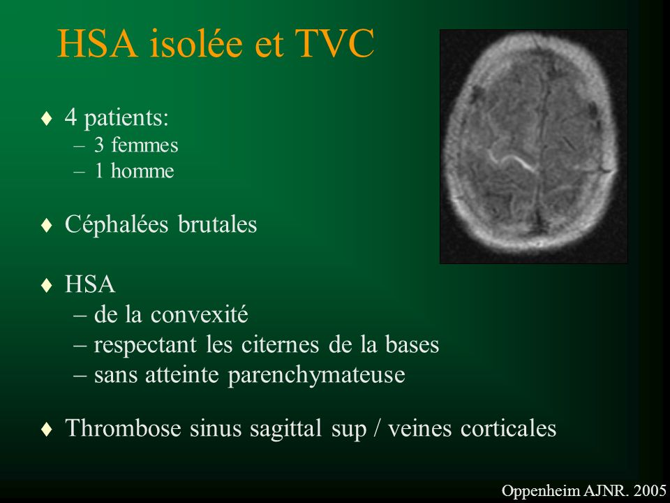 HSA isolée et TVC 4 patients: Céphalées brutales HSA de la convexité