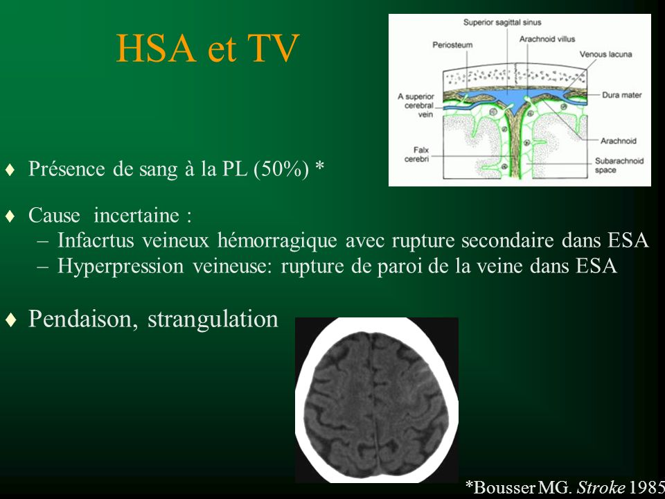 HSA et TV Pendaison, strangulation Présence de sang à la PL (50%) *