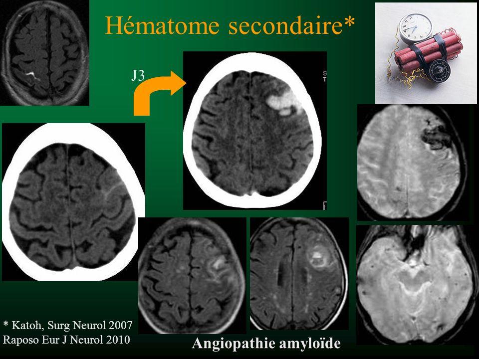 Hématome secondaire* J3 Angiopathie amyloïde