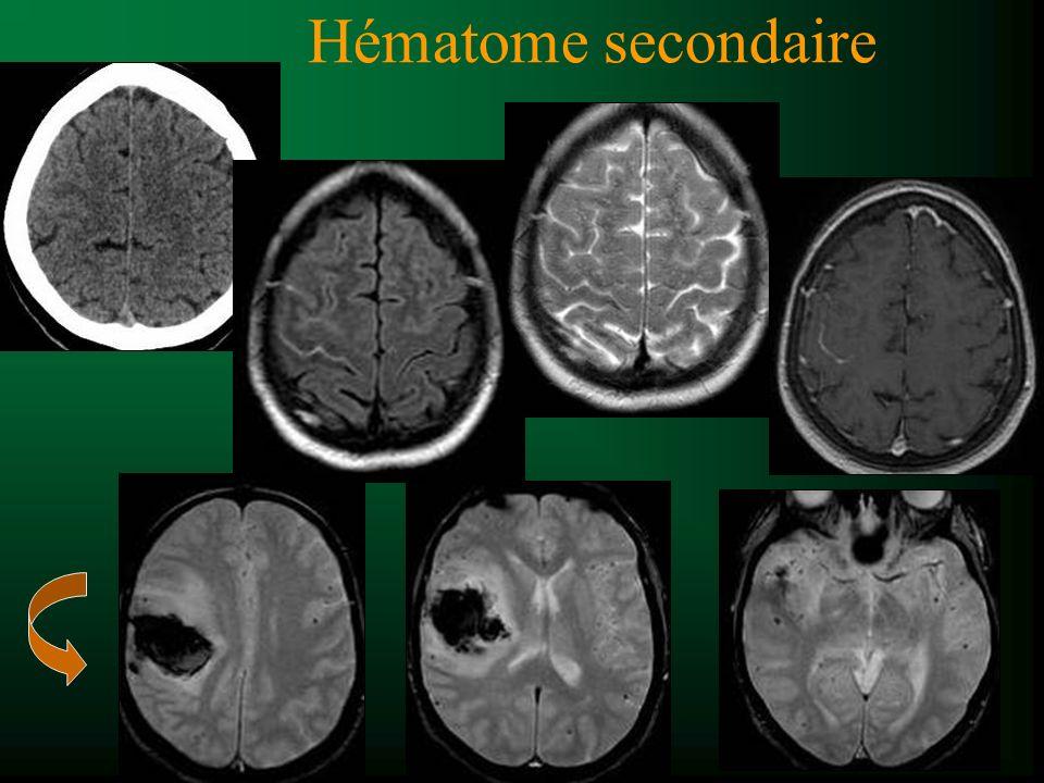 Hématome secondaire