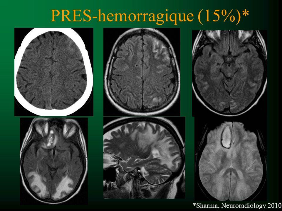 PRES-hemorragique (15%)*