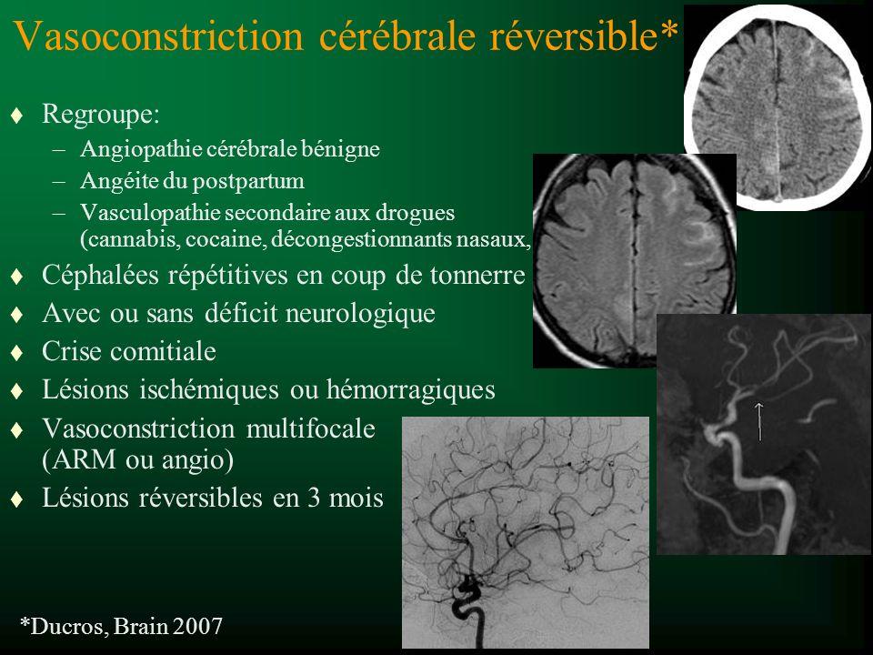 Vasoconstriction cérébrale réversible*